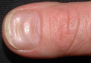 Surcos a través de las uñas (líneas de Beau)