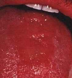 La candidiasis bucal (Candida albicans)