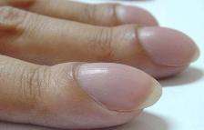 Uñas y puntas de los dedos inusualmente curvadas