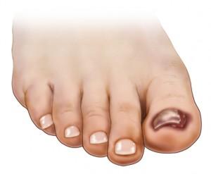 Infección por hongos en las uñas