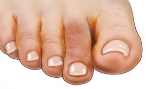 Infecciones por hongos en la piel