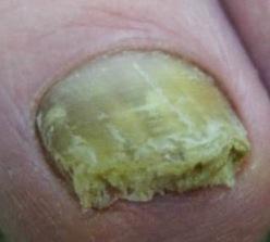 Engrosamiento y sobre-crecimiento en las uñas