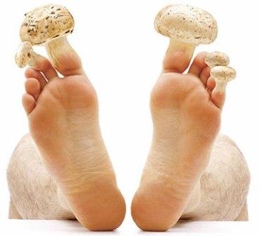 El tratamiento por la agua oxigenada del hongo de las uñas por neumyvakinu