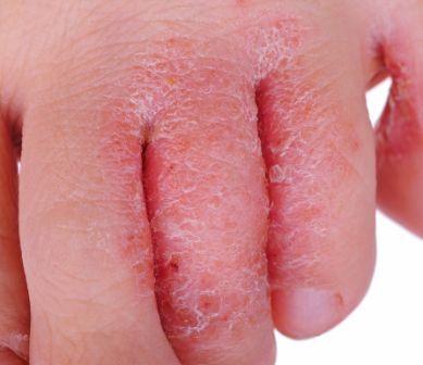 Donde y como es posible sanar el hongo de las uñas