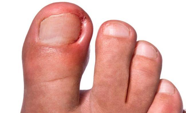 como sacar una una encarnada del dedo gordo del pie